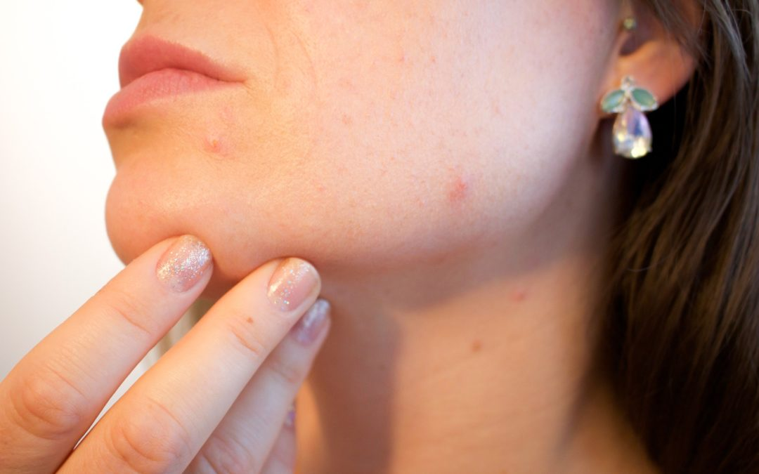 Acne and How to Easily Combat It